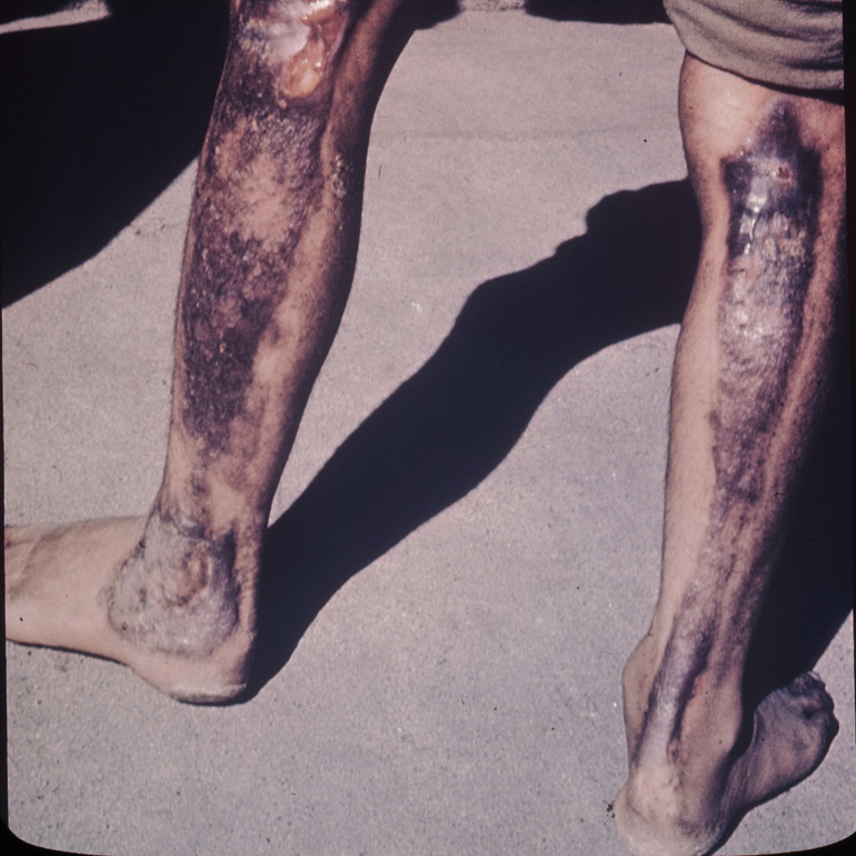 Hiroshima patients - burns due to atomic radiation of legs, photo: Wikipedia