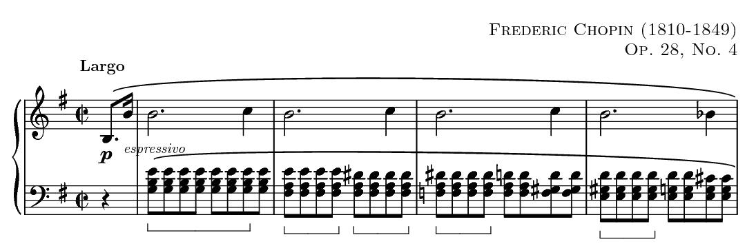 Górna linia: Melodia. Dolna linia: akompaniament oparty na ostinato lewej ręki Preludium E-moll (op.28 nr4 ).
