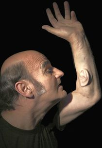Stelarc, Ear on Arm, 2006, photo by Nina Sellars