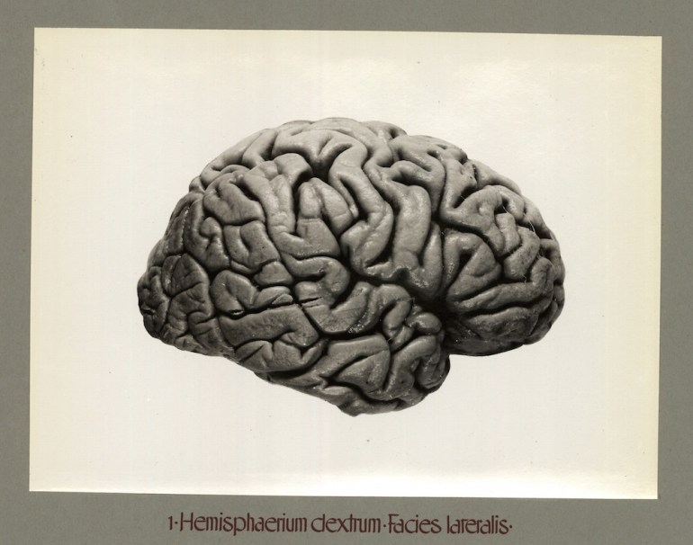 Piłsudski's brain - right hemisphere, lateral part; source: Mózg Piłsudskiego at Polona / www.polona.pl