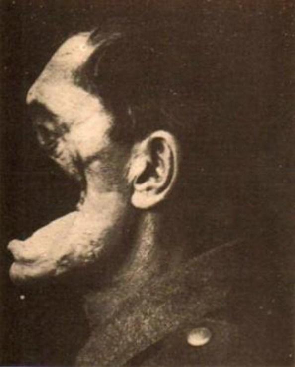 «Krieg dem Kriege! Guerre à la Guerre! War against War! Oorlog aan den Oorlog! Ernst Friedrich», 1924. Фото: arbeiterfotografie.com